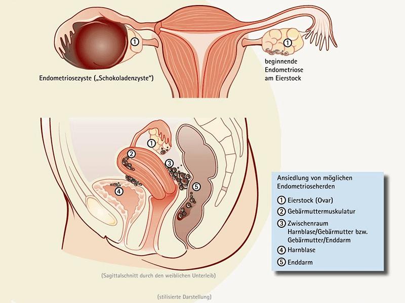 Atemberaubend Weibliche Anatomie Gebärmutter Diagramm Zeitgenössisch ...